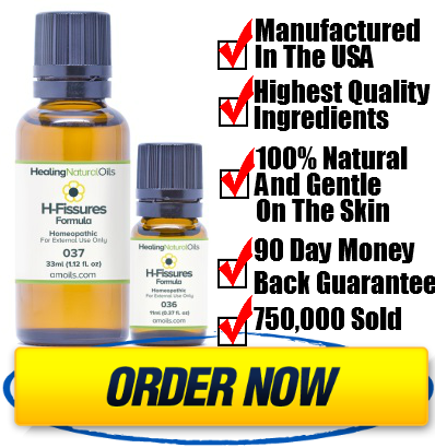 Treatment herbal Anal fissure